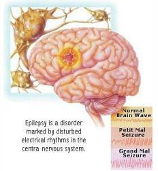 penyakit epilepsi
