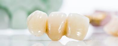 malas sikat gigi menyebabkan penyakit jantung