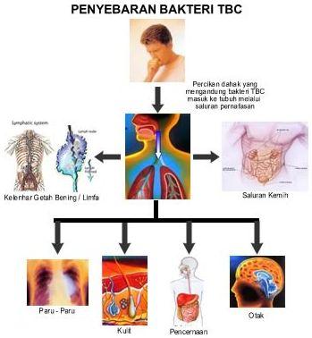 Penderita TBC