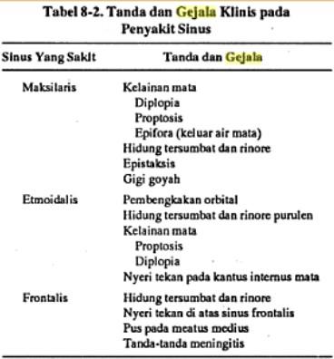 Penyakit Sinusitis 2