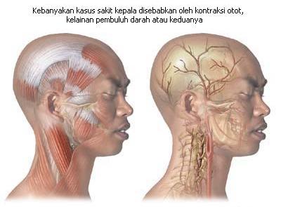 Mengenal Jenis-Jenis Sakit Kepala 1