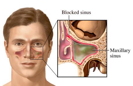 Penyakit Sinusitis 1