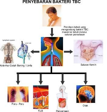 Penyakit TBC : Gejala, Penularan dan Obat Tuberkulosis 1