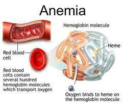 Anemia atau Kekurangan Sel Darah Merah : Gejala, Penyebab dan Pengobatannya