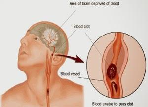 7 Cara Menyembuhkan Penyakit Stroke dengan Bahan Alami 1