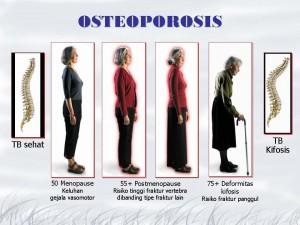 Osteoporosis, Gejala, dan Cara Pencegahannya
