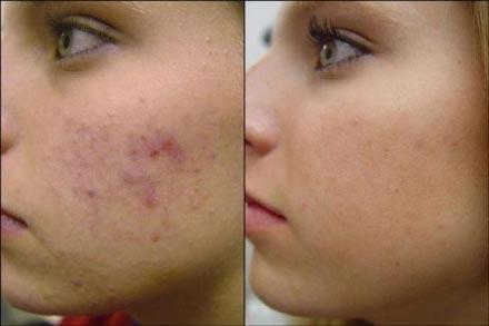 Tips Mengatasi Bintik Hitam Pada Wajah
