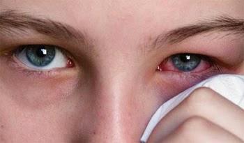 3 Obat Sakit Mata Dengan Bahan Alami 1