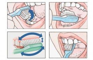 Menggosok gigi dengan benar
