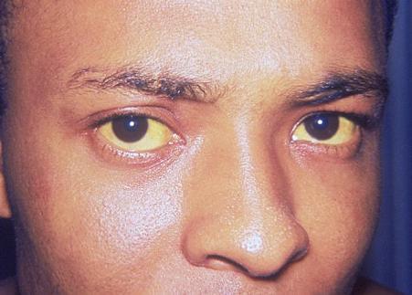 waspada penyakit hepatitis a