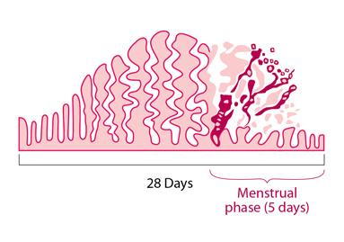 Sakit perut saat PMS
