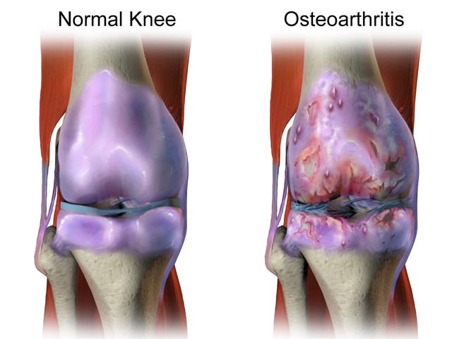 Kegemukan mengakibatkan nyeri lutut