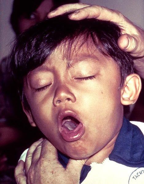 Anak rentan terkena TB