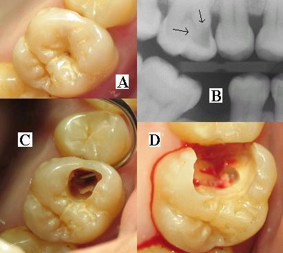 Penyebab dan pengobatan karies gigi